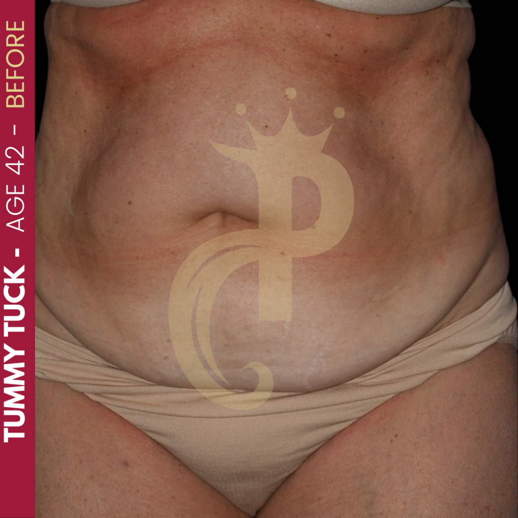 Tummy Tuck Before After