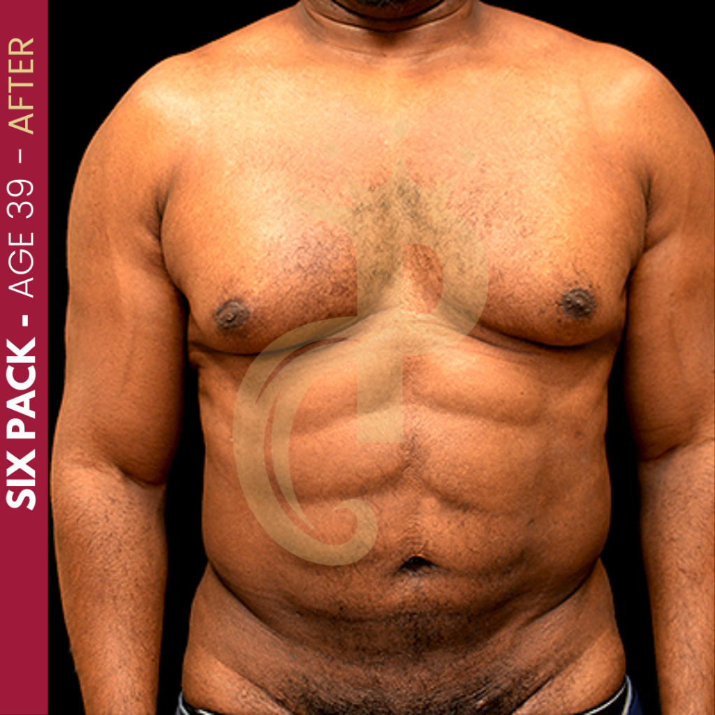 Six Pack Before and After