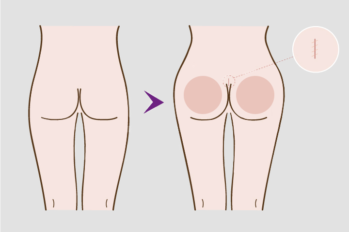Buttock Implants