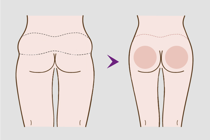 Buttock Lifts