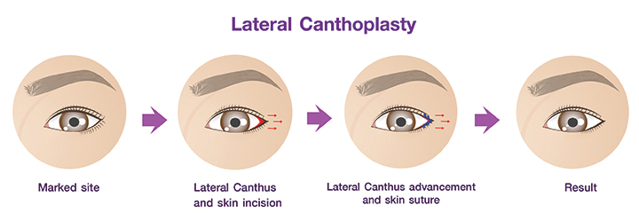 Canthoplasty