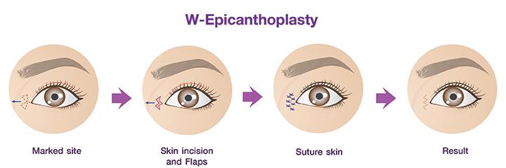 Epicanthoplasty