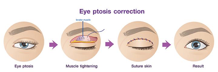 Eye ptosis surgery