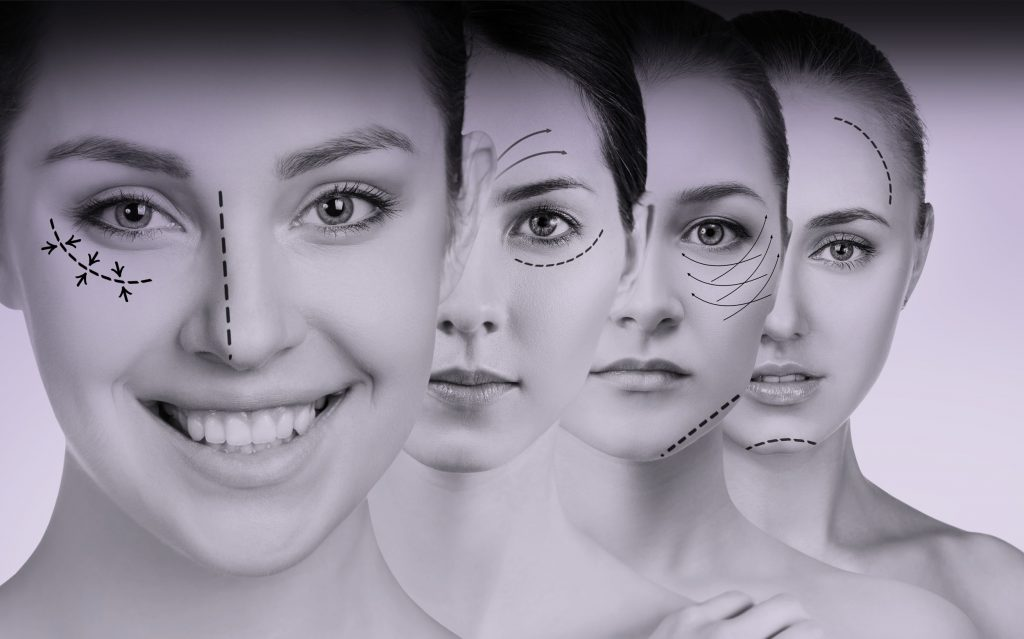 Facelift Surgery in Turkey