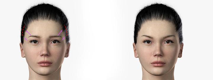 Forehead-Lift