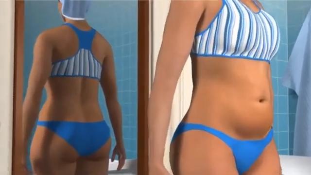 Liposuction Animation