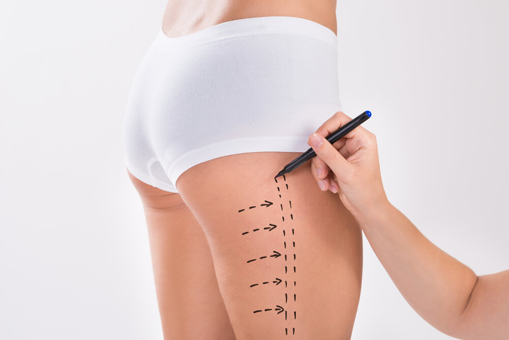 Thigh Lift Cost