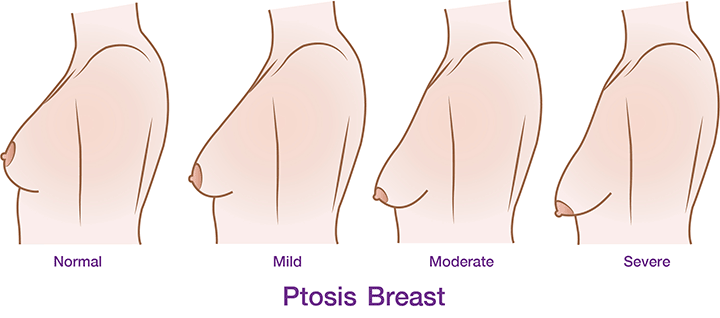 degree-of-breast-01