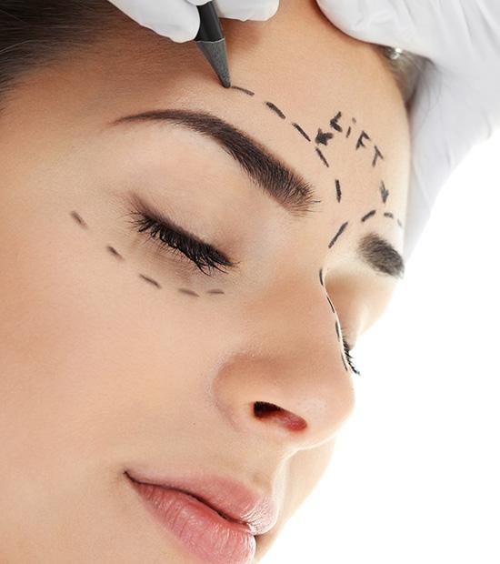 Eyelid Surgery Cost