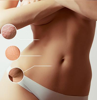 vaser-hi-def-liposuction-1.jpeg