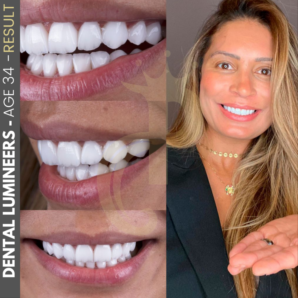 Hollywood Smile Before and After