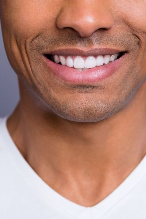 dental-aesthetics