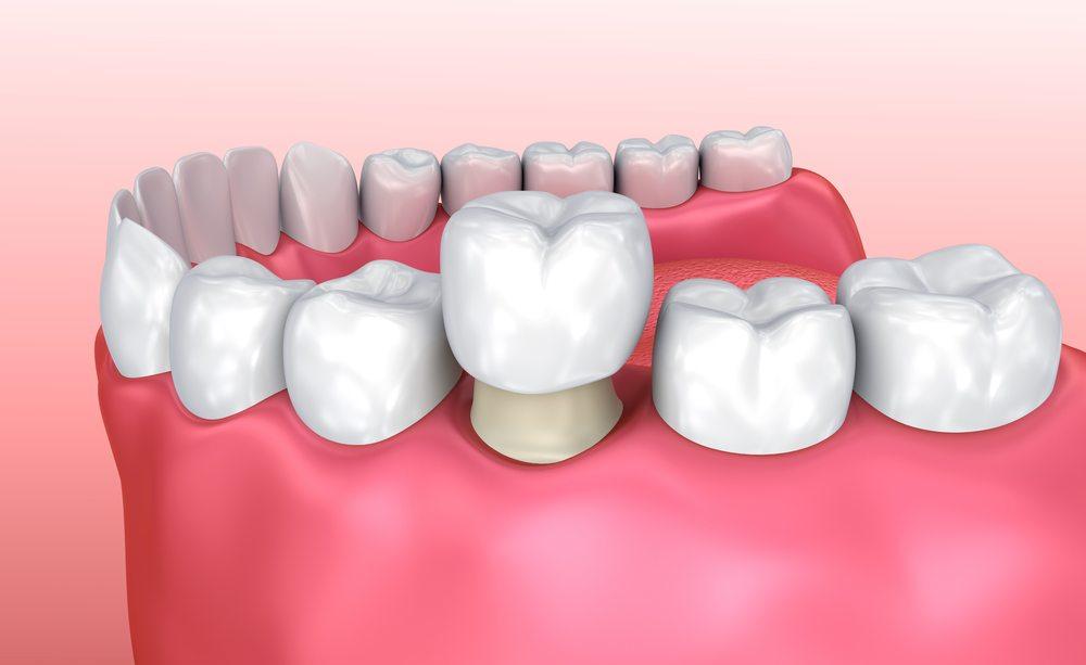 dental-crown-process
